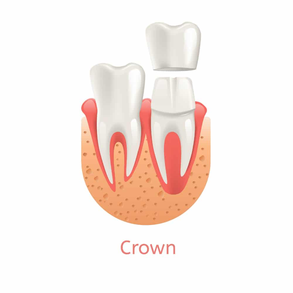 DENTAL CROWNS near Carmel Indiana