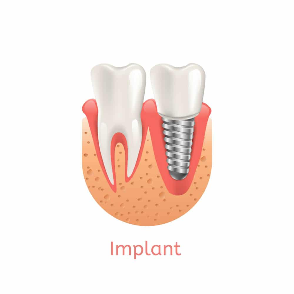 Dental Implants Restorations Carmel Indiana