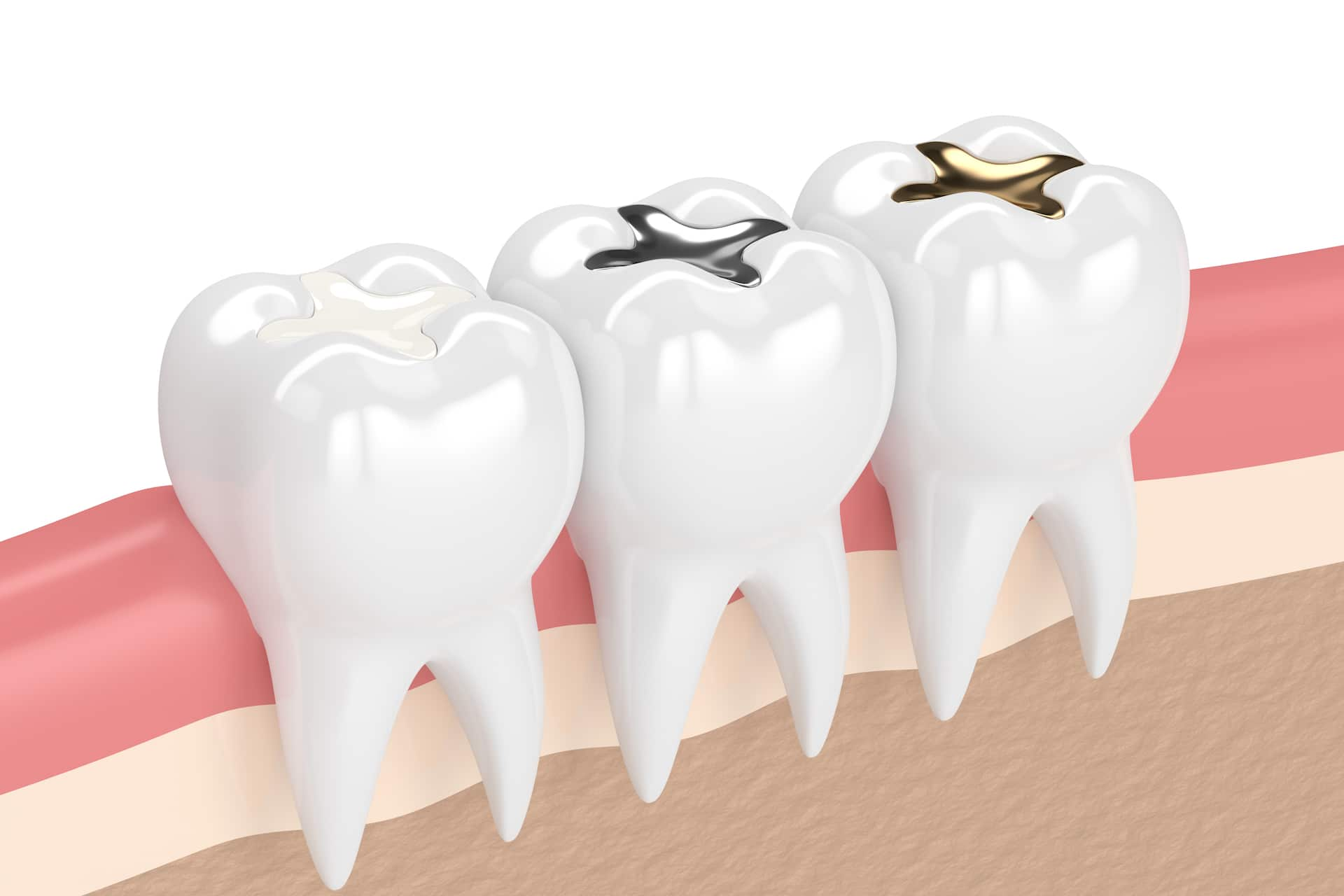 Fillings for Cavities in Carmel IN